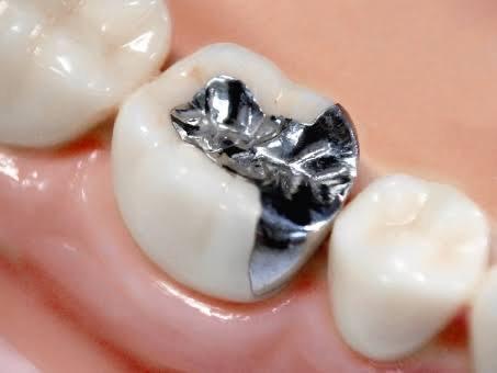 歯 し みる 銀 詰め物をつけた後に歯がしみる、痛みを感じるのはなぜ?しばらく様子を見たい3つの症状